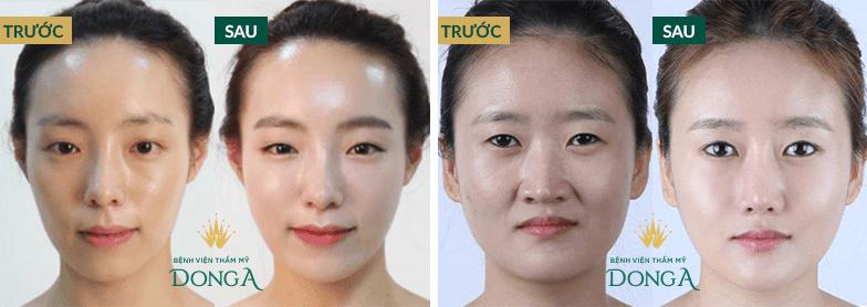 Cấy mỡ mặt BioGen - Giảm nếp nhăn - Trẻ hóa khuôn mặt an toàn 7