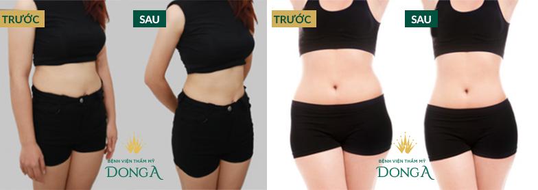Hình ảnh khách hàng trước và sau khi giảm mỡ Slimlipo Extra