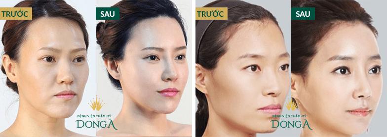Hình ảnh khách hàng trẻ hóa khuôn mặt BioGen Plus tại Đông Á