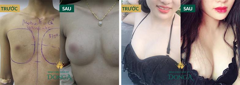 Hình ảnh khách hàng trước và sau khi nâng ngực tự thân BioFat