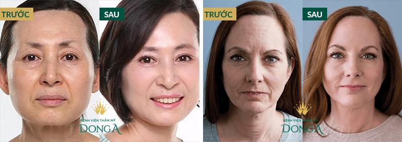 Kết quả chống lão hóa da Bio Anti - Aging tại Đông Á