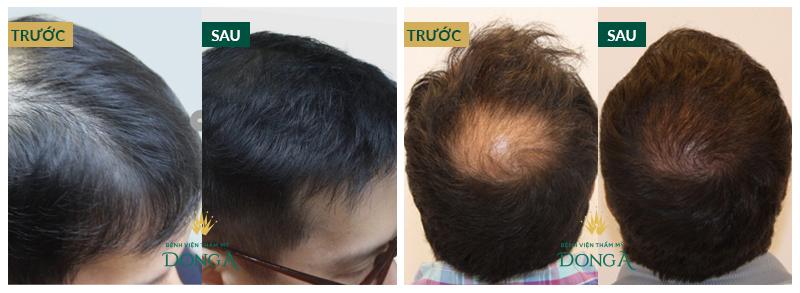 Trị rụng tóc tự thân BioHair | Hết rụng tóc - Tóc mọc dày mượt chắc khỏe 7