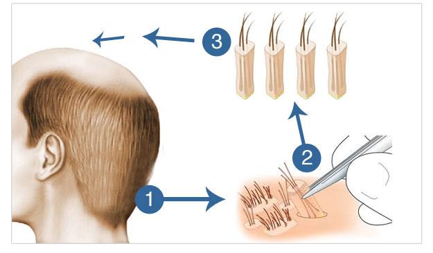 Cấy tóc tự thân BioHair Transplant | Trị hói AN TOÀN - BỀN LÂU