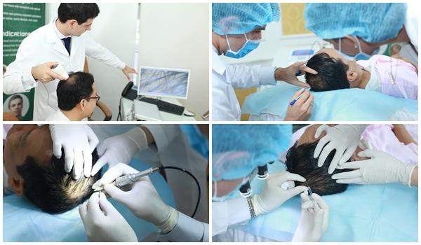 Ưu điểm vượt trội từ công nghệ cấy tóc tự thân Bio Hair Transplant
