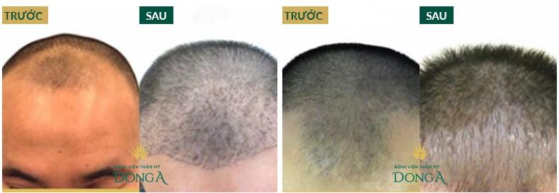 Kết quả cấy tóc tự thân Bio Hair Transplant