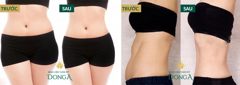 Hình ảnh khách hàng trước và sau khi giảm béo SlimLipo tại Đông Á