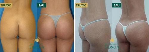 Hình ảnh khách hàng trước và sau khi nâng mông tự thân BioFat
