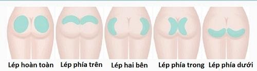 Nâng mông tự thân BioFat | Sở hữu vòng 3 Căng tròn - Đẹp - Quyến rũ