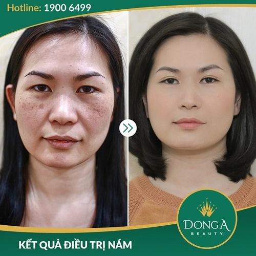 Hình ảnh khách hàng sau khi trị nám, - trị sẹo tại BVTM Đông Á 3