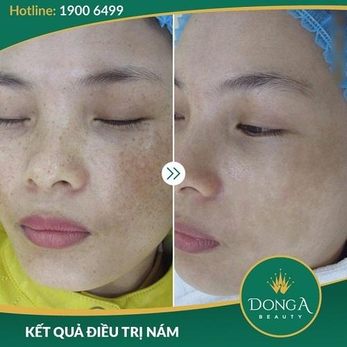 Hình ảnh khách hàng sau khi trị nám, - trị sẹo tại BVTM Đông Á 5