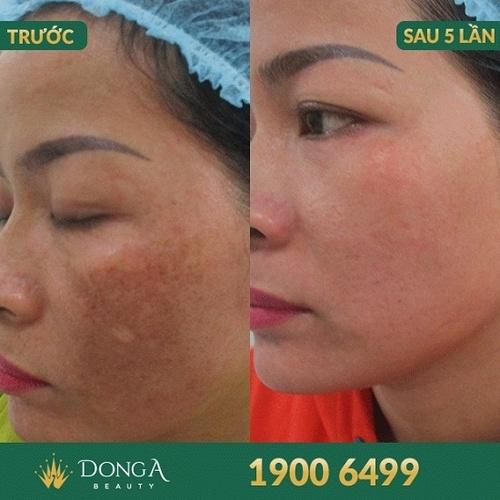 Hình ảnh khách hàng sau khi trị nám, - trị sẹo tại BVTM Đông Á 6