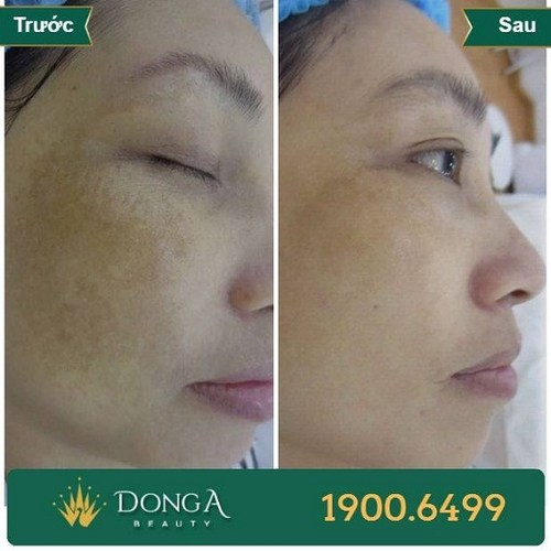 Hình ảnh khách hàng sau khi trị nám, - trị sẹo tại BVTM Đông Á 7