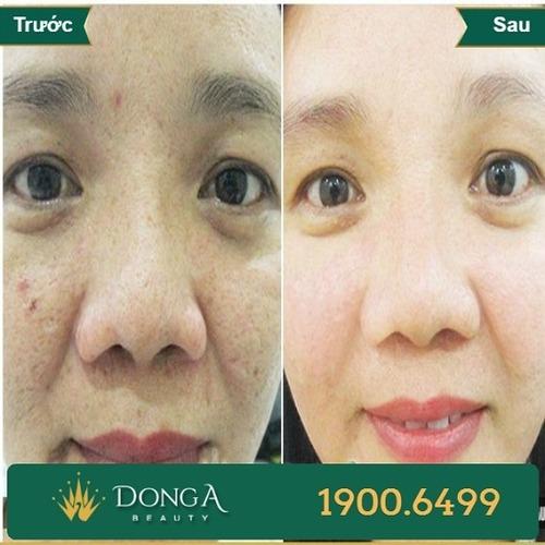 Hình ảnh khách hàng sau khi trị nám, - trị sẹo tại BVTM Đông Á 9