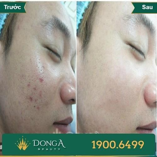 Hình ảnh khách hàng sau khi trị nám, - trị sẹo tại BVTM Đông Á 8