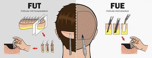 Cận cảnh quy trình cấy tóc tự thân - Tóc dày, khỏe, đẹp nhanh chóng 1