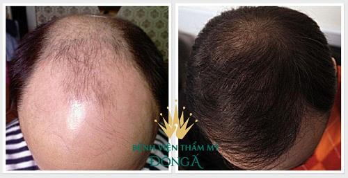 Chi phí cấy tóc, trị rụng tóc tự thân tại BVTM Đông Á năm 2019