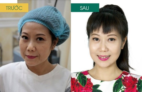 Hình ảnh khách hàng sau khi trị nám, - trị sẹo tại BVTM Đông Á 11