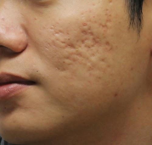 Tổng hợp video trị nám Bio Melasma và trị sẹo Bio Scar