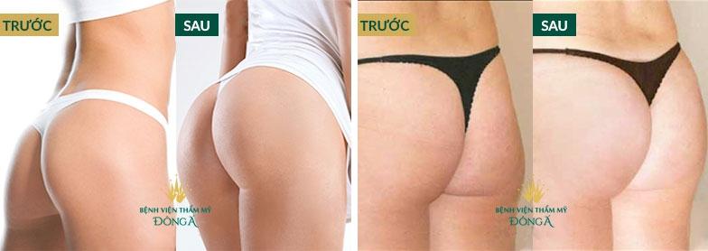 Hình ảnh nâng ngực, nâng mông của khách hàng thực tế tại Đông Á 1