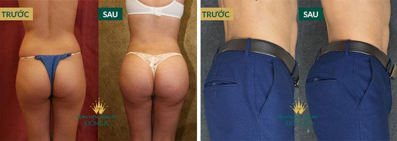 Hình ảnh nâng ngực, nâng mông của khách hàng thực tế tại Đông Á 2