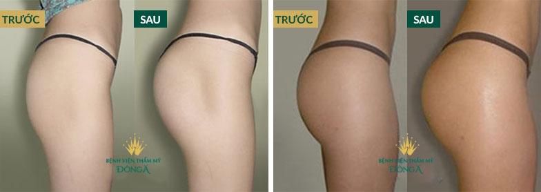 Hình ảnh nâng ngực, nâng mông của khách hàng thực tế tại Đông Á 3