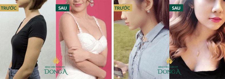 Hình ảnh nâng ngực, nâng mông của khách hàng thực tế tại Đông Á 7