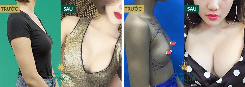 Hình ảnh nâng ngực, nâng mông của khách hàng thực tế tại Đông Á 5