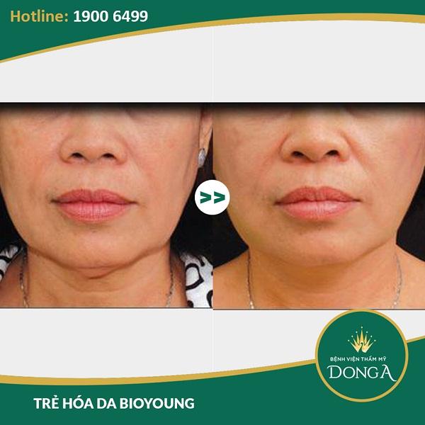 Hình ảnh khách hàng thực tế sau khi trải nghiệm công nghệ trẻ hóa da