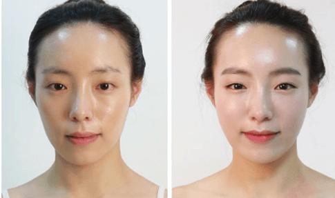 Phương pháp trẻ hóa da mặt đúng cách giúp da hồi xuân nhanh chóng 6