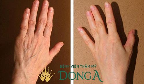 6 Cách làm da tay hết nhăn - An Toàn - Da tay Trẻ Đẹp sau 15p 12