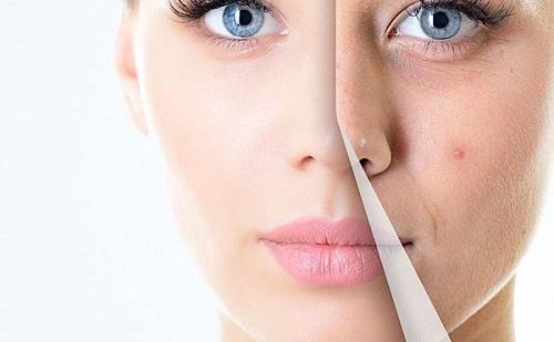 Cách chống lão hóa da mặt hiệu quả nhanh chóng giúp da tươi trẻ 3