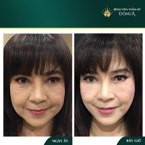 Cách chống lão hóa da mặt hiệu quả nhanh chóng giúp da tươi trẻ 8