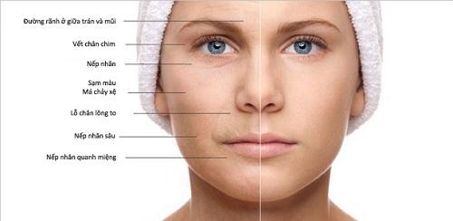 Cách chống lão hóa da mặt hiệu quả nhanh chóng giúp da tươi trẻ 1
