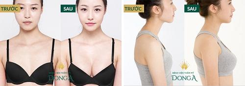 Nâng ngực bằng mỡ tự thân tại Hà Nội - Bật mí địa chỉ uy tín qua 5 tiêu chí 8