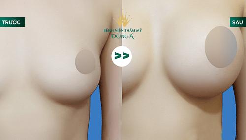 Nâng ngực bằng mỡ tự thân tại Hồ Chí Minh - khám phá địa chỉ uy tín số 1 3