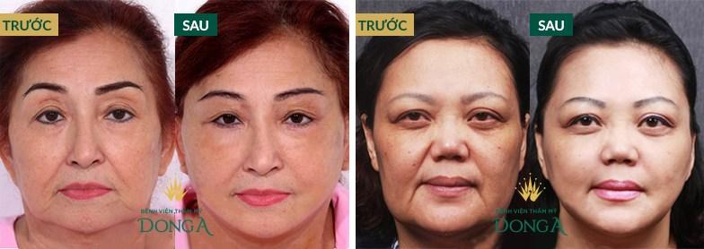 Tái tạo da mặt có hại không? Đánh giá 3 cách tái tạo da phổ biến nhất 5
