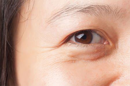 8 Cách xóa nếp nhăn vùng mắt Hiệu Quả - An toàn cho đôi mắt tươi trẻ 2