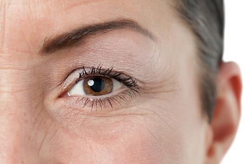 8 Cách xóa nếp nhăn vùng mắt Hiệu Quả - An toàn cho đôi mắt tươi trẻ 8