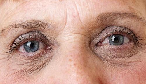 8 Cách xóa nếp nhăn vùng mắt Hiệu Quả - An toàn cho đôi mắt tươi trẻ 11