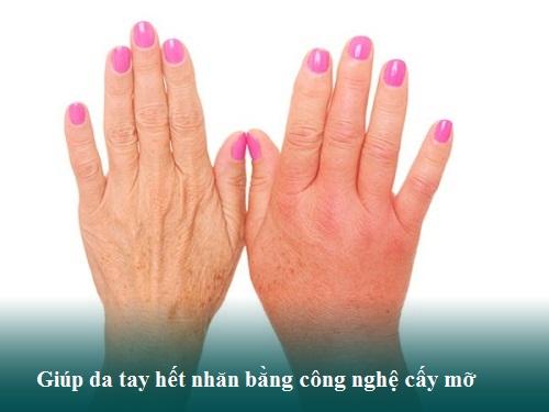 6 Cách làm da tay hết nhăn - An Toàn - Da tay Trẻ Đẹp sau 15p 11
