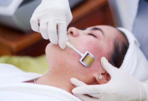 Có ai trị sẹo rỗ thành công chưa? Chia sẻ kinh nghiệm trị sẹo rỗ hiệu quả 1