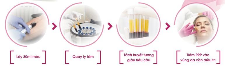 Phương pháp tiêm huyết tương giàu tiểu cầu Giúp trẻ hóa tái tạo làn da 4