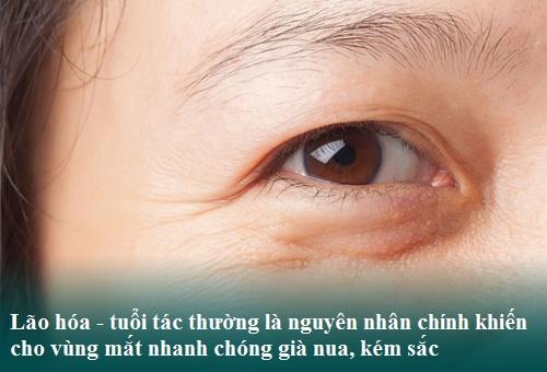Trẻ hóa da vùng mắt An Toàn-Hiệu Quả bằng công nghệ cấy mỡ tự thân 1