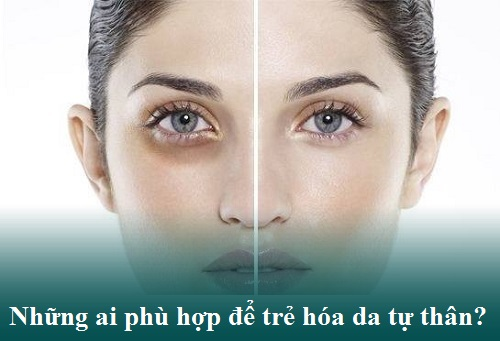 Trẻ hóa da vùng mắt An Toàn-Hiệu Quả bằng công nghệ cấy mỡ tự thân 4