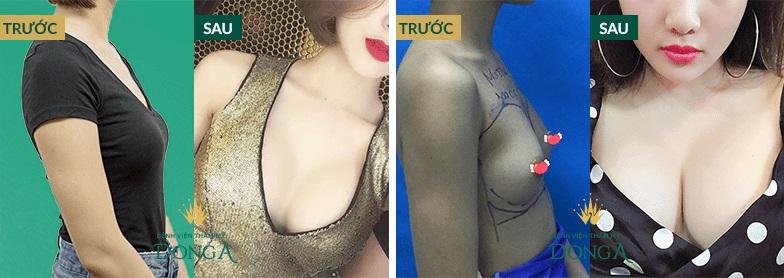 Chi phí nâng ngực bằng mỡ tự thân giá bao nhiêu để ngực to đẹp dài lâu 11