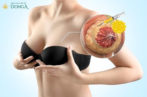 Chi phí nâng ngực bằng mỡ tự thân giá bao nhiêu để ngực to đẹp dài lâu 5