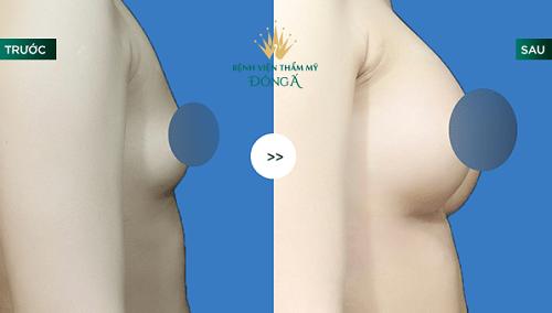 Nâng ngực bằng mỡ tự thân - 50p biến hóa vòng 1 To Tròn an toàn 8