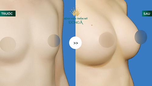 Nâng ngực bằng mỡ tự thân - 50p biến hóa vòng 1 To Tròn an toàn 9