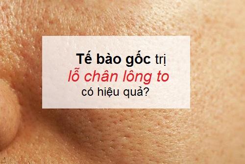 Tế bào gốc se khít lỗ chân lông giúp da TRẺ ĐẸP sau 1 tháng sử dụng 1