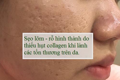 Trị sẹo lõm/rỗ ở đâu Hiệu quả - An toàn - Nhanh nhất giúp da mịn màng 1